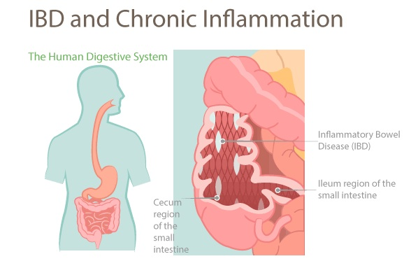 chronic-inflammation-IBD
