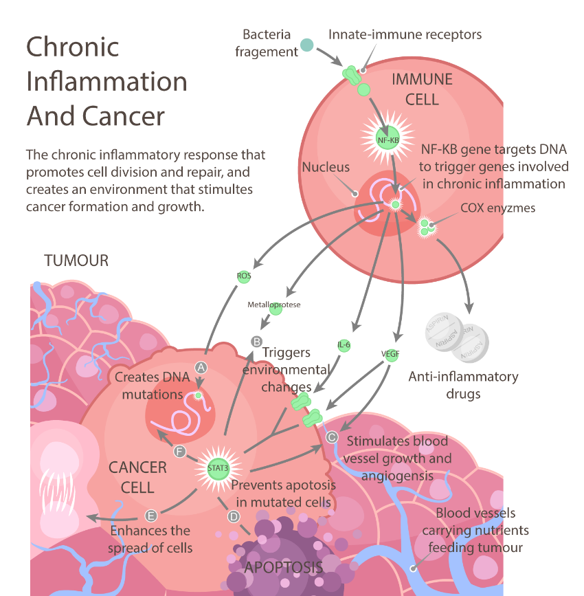 chronic-inflammation-and-cancer
