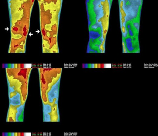 earthing-leg-pain