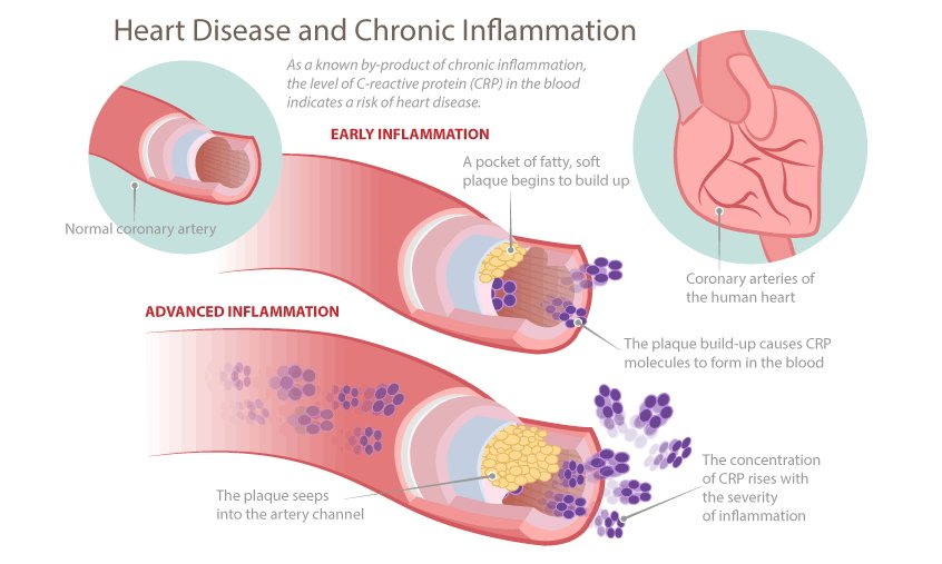 Chronic Inflammation And Heart Disease Earthing Canada
